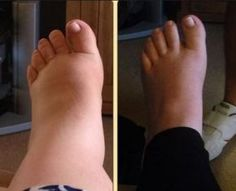 11 photos of pregnancy swelling: How do your feet compare? Compression Socks For Travel, Swollen Ankles, Fashion Models, Diabetic Neuropathy, Foot Pain, Varicose Veins, How To Get Rid, Pain Relief, Pregnancy Swelling