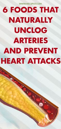 Top 6 Foods That Naturally Unclog Arteries and Prevent Heart Attacks - Hecspot