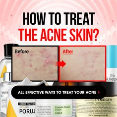 Prevent and remove your skin problems ! Wishtrend's Acne care promotion, Go now > #Wishtrend #Promotion #Acne #Acnecare #Freegift #Vouchercode #Coupone #Skinmiso #Leilani