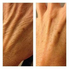 Look what Defining Gel can do from ItWorks. healthyhelp.myitworks.com