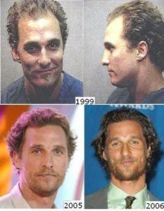 Did Matthew McConaughey get a hair transplant?