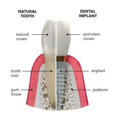 "A dental implant is a titanium screw that is surgically positioned into the jawbone, beneath your gum tissue.  If you compare natural teeth to implant-supported teeth, you will find they have the same basic parts.  Both have a crown (the visible part used to chew food) and both have a ""root"" that is anchored into the jaw."