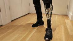 beautiful prosthesis - Google-haku