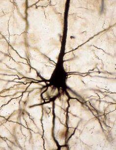 Neurona piramidal del cerebro, observada al microscopio óptico Brain Art, Neuroscience, Fractals, Psychology, Photoshop, Graphic Design, World, Patterns, Night