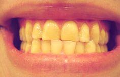 Un sorriso dai denti bianchi e brillanti può fare apparire chiunque più piacevole, più sano e giovane. Ecco i 10 migliori rimedi casalinghi contro i denti gialli.