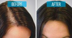 Stop hair loss. Add these two ingredients to your shampoo for an affordable hair loss treatment