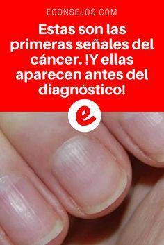Señales cancer | Estas son las primeras señales del cáncer. !Y ellas aparecen antes del diagnóstico! | Una de las señales son en las uñas. Sepa todo sobre ésta y las otros. Lea aquí ↓ ↓ ↓