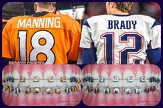 #denver #denverbroncos #manning #peytonmanning  #newenglandpatriots #brady #tombrady #iphone #android #teeth #app #free #freeapp #top #best #americanfootball #sportsauthority #nflsunday #nflmemes
