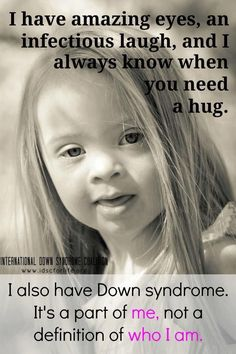 Down's Syndrome is a diagnosis, not a disease. They are LOVED!
