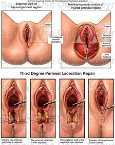 perineal lacerations | Perineal Laceration look like? Are you also searching for Perineal ...