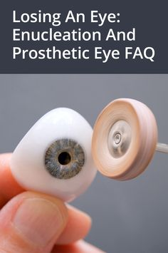 Answers to common questions about surgical removal of an eye (enucleation) and the fitting and care of a prosthetic eye (glass eye).