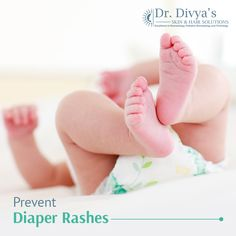 To avoid rashes on the baby skin, always keep the diaper area dry, and use breathable diapers made of superabsorbent material. #DiaperRash #Babycare
