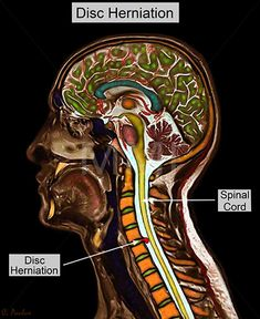 Annotated Color MRI Cervical Spine Anatomy Disc Herniation