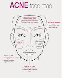 Acne Focused Face Map Showing Causes And Solutions Some Self