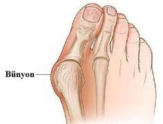 Bünyonlar ayaklarınızda ortaya çıkabilecek en çok acı veren ve sıkça görülen bozukluklardan biridir. Bunlar genelde doğru türde ayakkabı giymemekten kaynaklanır, ancak kalıtsal bir sorun da olabilir. Bu makalede bünyonları önlemenin bazı doğal yollarını inceliyoruz.