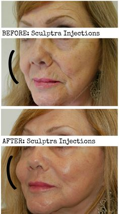 With the passing of time, the face loses bone density and fat-pads -- all of the things that provide structure to the skin. #Sculptra injections help to replace these lost sources of volume, and allow you to look younger and rejuvenated. #injections #philadelphia #skincare #beauty