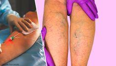 Varicose Vein Remedy, Varicose Veins, Bra Hacks, Sciatica, Zumba, Pain Relief, Home Remedies, Diabetes, Health Fitness