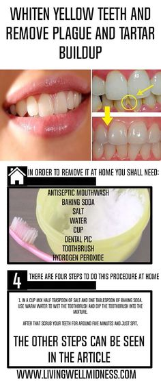 Whiten Yellow Teeth and Remove Plague and Tartar Buildup - Living Wellmindness #teethwhitening