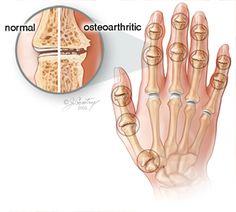 Massage Therapy and Osteoarthritis Pain.  EastVancouverChiro.com