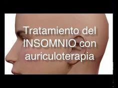 Auriculoterapia Insomnio - YouTube