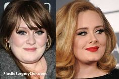 Adele needed a nose job and some additional plastic surgery before she got famous.  The before and after photos of her show she had a bulbous nose before plastic surgery.
