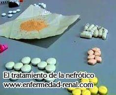 Si los pacientes sólo son tratados con estos medicamentos occidentales, la mayoría de los casos van a experimentar los niveles de creatinina más y más altos. Finalmente tienen que tomar un tratamiento de diálisis, que es también uno de los niveles de creatinina alta tratamiento común