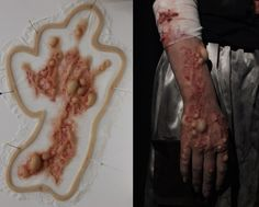 Silicone burnt and blistered hand prosthetic
