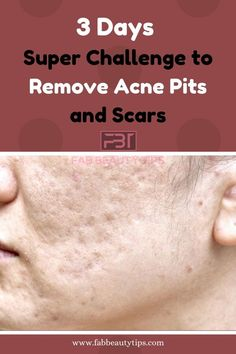 Are you tired of Acne Scars? Then this Article is for you. Try these simple Home Remedies to remove acne scars in 3 days. Scar Remedies, Home Remedies For Acne, Natural Remedies, Cold Remedies, Home Health Remedies, Sleep Remedies, Holistic Remedies, Acne Scar Removal Treatment, Natural Beauty Tips