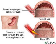 Lower esophageal sphincter (LES), Gastroesophageal Reflux Disease (GERD), Esophageal cancer, heartburn, acid reflux, reflux, chronic heartbu...