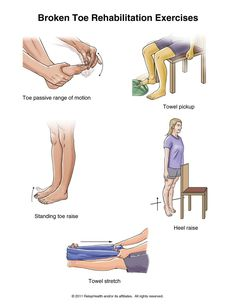 shoulder exercises in water | Summit Medical Group - Toe Fracture Exercises