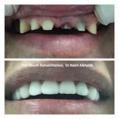 #inabudhabi #ABUDHABI #dentistry #badbreath #girl #uae #love by drnabilalkhatib Our General Dentistry Page: http://www.lagunavistadental.com/services/general-dentistry/ Google My Business: https://plus.google.com/LagunaVistaDentalElkGrove/about Our Yelp Page: http://www.yelp.com/biz/fenton-krystle-dds-laguna-vista-dental-elk-grove-3 Our Facebook Page: https://www.facebook.com/LagunaVistaDental/ Laguna Vista Dental 7915 Laguna Blvd Ste 150 Elk Grove CA 95758 (916) 684-3105 Mon: 9am - 6pm Tues…