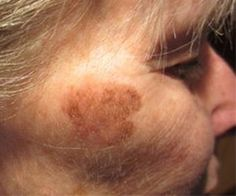 MD Advice: How to Remove Dark Spots