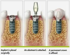 A dental implant is placed surgically, an abutment is attached, and then a permanent crown is affixed.  #DentalImplants #Implants