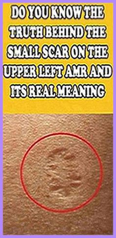Do You Know The Truth Behind The Small Scar On The Upper Left Arm And Its Real Meaning Wellness Tips, Health And Wellness, Health And Beauty, Women's Health, Wellness Activities, Natural Health Tips, Natural Healing, Natural Detox, Vsco