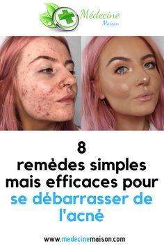 Un visage qui a des boutons, qui est taché et qui porte des cicatrices d'acné peut être extrêmement gênant pour certaines personnes. L'acné est principalement causée par des pores obstrués par un excès d'huile, la pollution, la saleté ou la crasse. Ils guérissent et quand cela se produit, ils laissent aussi certaines marques. Parfois, piquer …