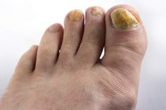 Fingernail fungus is a common problem among adults and occurs when the nail bed is infested with fungi or bacteria. Nail fungus can occur when there are cracks Toenail Fungus Home Remedies, Fingernail Fungus Treatment, Toenail Fungus Treatment, Nail Treatment, Toe Fungus, Fungus Toenails, Fungal Nail Infection, Home Remedies, Mushrooms