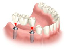 Dental Implants have turned into the highest quality level for tooth substitution in dentistry, We Oakton family helps you to have a safe & secure dental implant. Call us today to discuss our professional Dental implant techniques. Dental Implant Surgery, Implant Dentistry, Teeth Implants, Cosmetic Dentistry, Teeth Surgery, Oral Surgery, Dental Bridge Cost, Tooth Replacement, Dental Cosmetics