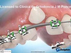 Dental Braces, Teeth Braces, Dental Care, Orthodontics Marketing, Dental Photos, Dental Videos, Braces Tips, Getting Braces, Cute Braces