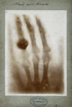 "Photoprint from radiograph by W K von Röntgen, 1895  The very first X-ray, taken by its inventor Wilhelm Röntgen (27 March 1845-10 February 1923), was of his wife's left hand. Upon seeing her skeletal likeness, she exclaimed: ""I have seen my death!"""