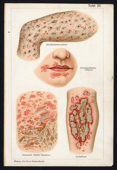 1907. Herpes and Eczema. -The Prints Collector 39198 C243-14