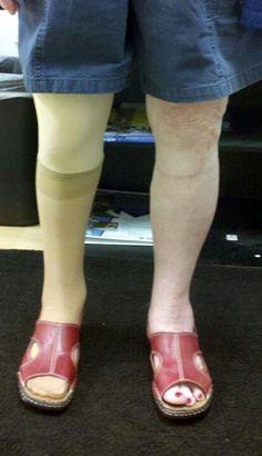 Finished ak prosthetic