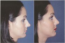 Rhinoplasty before and after. eyelid surgery, cosmetic surgeon, blepharoplasty, eye-lift