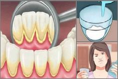 Mouthwash removing plaque teeth just 2 minutes Oral Health, Health And Wellness, Health Tips, Health Fitness, Health Care, Plaque Removal, Atkins Diet, Mouthwash, Natural Hair Care