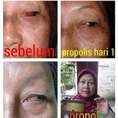 PROPOLIS sangat aman di gunakan untuk sakit mata,minum,katarak &  menyembuhkan bnyak penyakit lainnya .Yuk siapkan sbg P3K di rumah. Real testi from Bunda  Amanda Laksono ..Chat me..