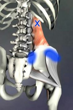 Quadratus Lumborum- the blue area indicates where pain refers to from this muscle.