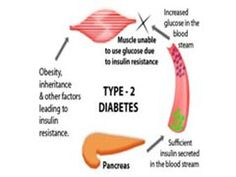 Top 10 Most Important #Type2Diabetes Facts and Statistics