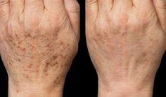 Felejtsd el az öregedési foltokat, reggelre újra csodaszép lesz a bőröd ettől!