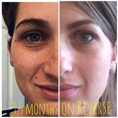 Beautiful results with the Reverse Regimen from Rodan + Fields! This is a personal picture (not from corporate) posted in my group. I love my results with this regimen, and I'm only on day 10! Sun spots, melasma, acne scars...this is the Regimen for you. All risk free! 60 day $ back guarantee. Meg.ford28@gmail.com for more information. Not interested but know somebody who might be? Send me their info & I'll personally give you an incentive:)
