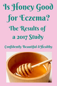 Is honey useful for treating atopic dermatitis or eczema? Is it really a good idea to rub it into your skin? Here's what a 2017 study suggests. Eczema Remedies, Skin Care Remedies, Skin Tips, Skin Care Tips, Organic Skin Care, Natural Skin Care, Sunscreen For Sensitive Skin, Healthy Skin Care, Honey