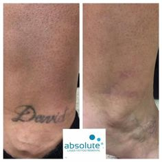 Laser tattoo removal before and after 8 treatments for Picosure tattoo removal michigan